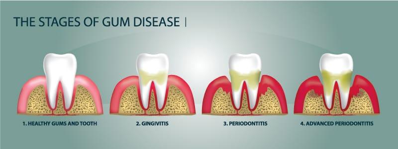 4-stages-of-gum-disease-fix-dentist-lewiston-auburn-maine-dental-office