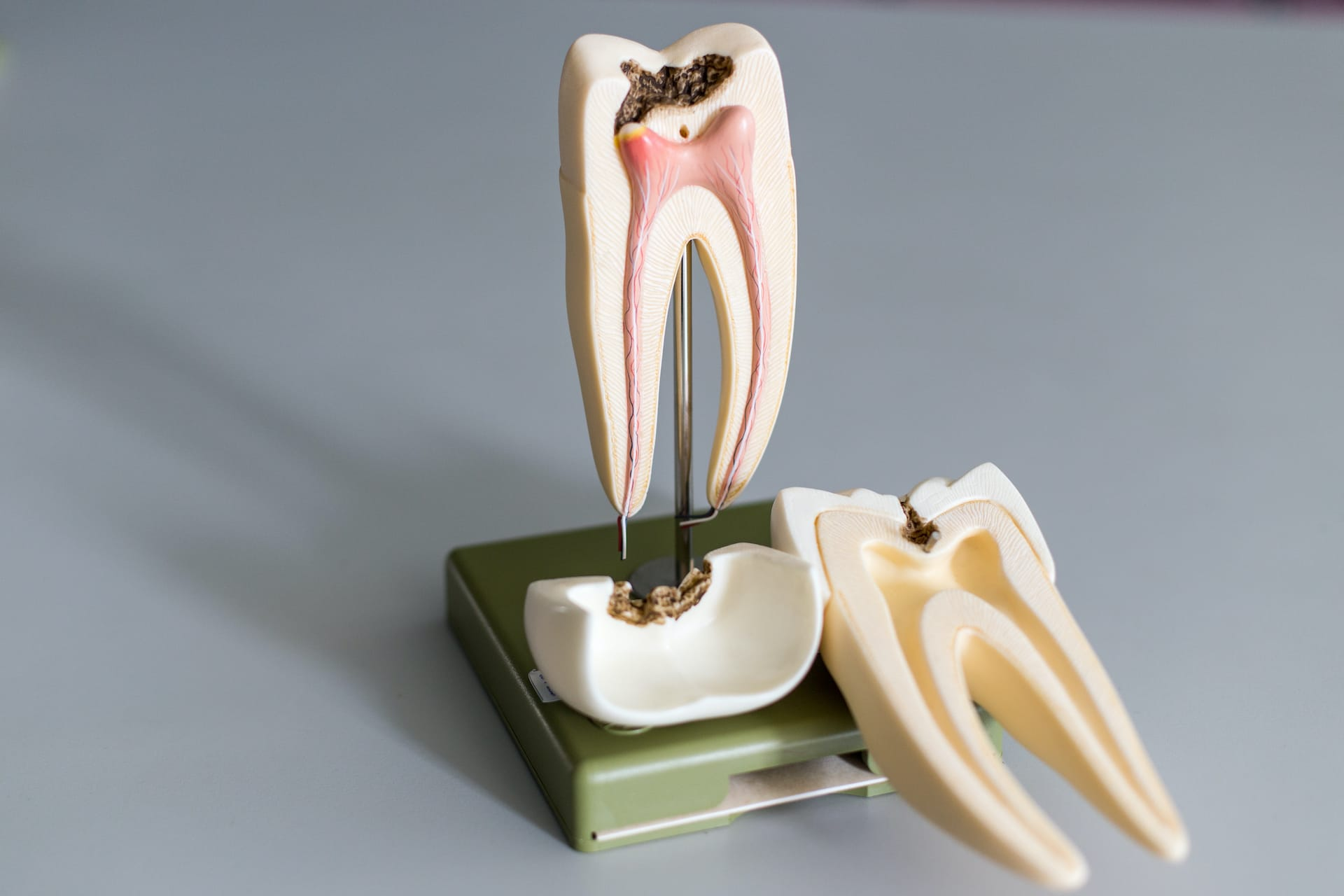 root canal therapy pain tooth emergency dentist lewiston maine