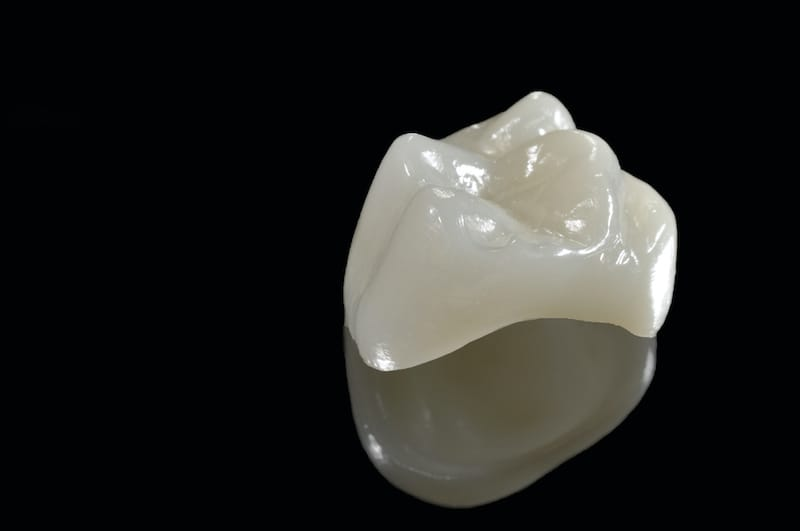 an isolated shot of a CEREC dental crown